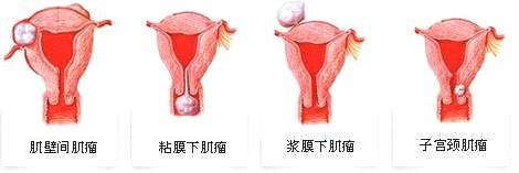 子宫肌瘤多大算严重,子宫肌瘤的危害有哪些